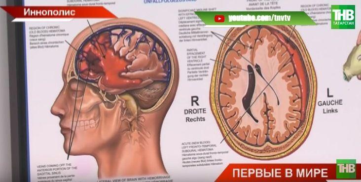 Ученые из Иннополиса в Татарстане разработали код, который может предсказать приступ эпилепсии (ВИДЕО)