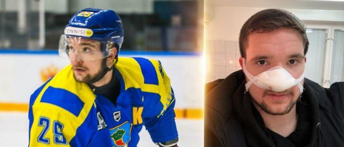 В Набережных Челнах хоккеисту во время матча отрезало кончик носа