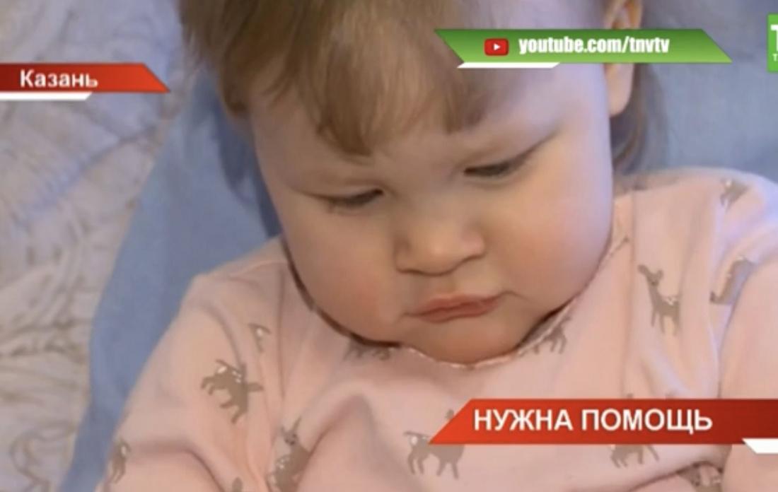Маленькой жительнице Казани срочно требуется помощь (ВИДЕО)